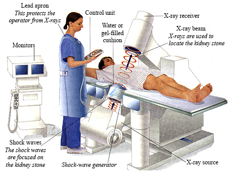 Extracorporeal Shockwave Lithotripsy