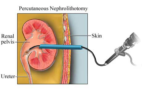 Percutaneous-nephroloithotomy